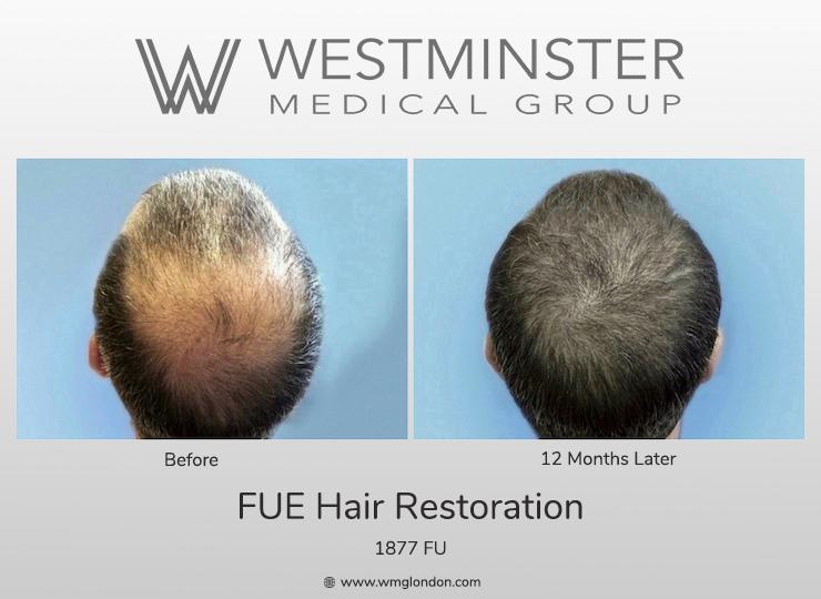 WMG Crown Restoration.jpg
