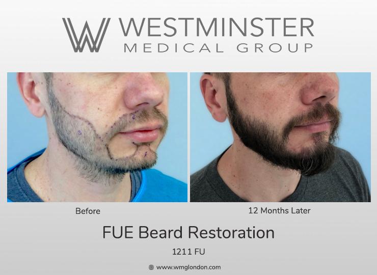 WMG FUE Beard.jpg