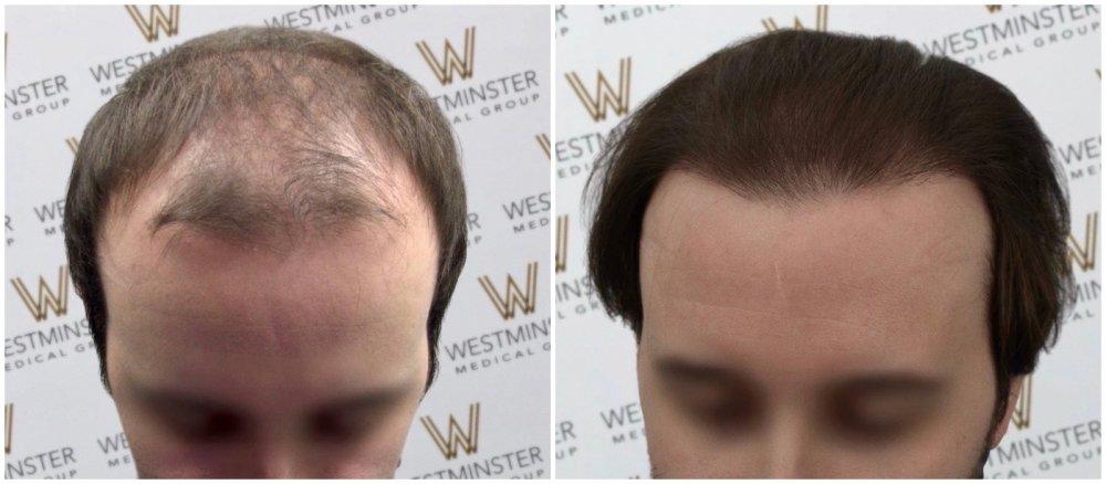 WMG FUE Hair Transplant.jpg