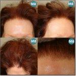 WOMEN-HAIR-DENSITY-300.jpg