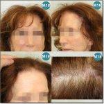WOMEN-HAIR-DENSITY-400.jpg