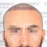 Hair transplant Turkey 6.jpg