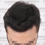 Hair transplant Turkey 13.jpg