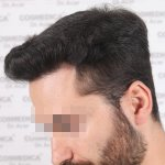 Hair transplant Turkey 14.jpg