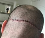 hair transplant repair surgery Dr Feriduni 2.jpg