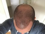 hair transplant repair surgery Dr Feriduni.jpg