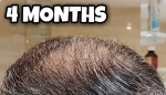 4 Months Crown.png