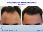 Hair Transplant with Dr Carlos Wesley2.jpeg