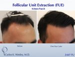 Hair Transplant with Dr Carlos Wesley5.jpeg