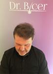 Dr Bicer Hair Tair transplant Turkey4.png
