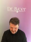 Dr Bicer Hair Tair transplant Turkey5.png