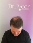 Dr Bicer Hair Tair transplant Turkey7.png