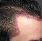 templ hair transplant.jpg
