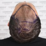 Cosmedica hair transplant3.jpg