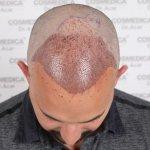 Cosmedica hair transplant8.jpg