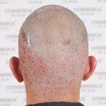 Cosmedica hair transplant12.jpg