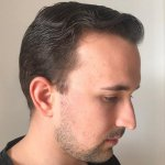 Cosmedica hair transplant16.jpg