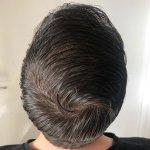Cosmedica hair transplant17.jpg