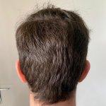 Cosmedica hair transplant18.jpg