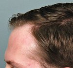 Hair Transplant - Jerry Cooley, MD5.jpg