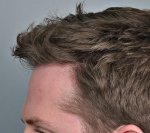 Hair Transplant - Jerry Cooley, MD14.jpg