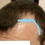 Temple points and hairline.jpg