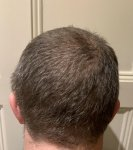 The Maitland Clinic review hair transplant.jpg