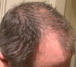 The Maitland Clinic hair transplant post op.jpg