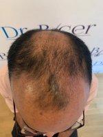 Pre-op scalp before hair shave.jpg