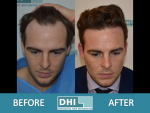 DHI Hair Transplant 1.PNG
