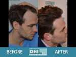 DHI Hair Transplant 2 (2).PNG