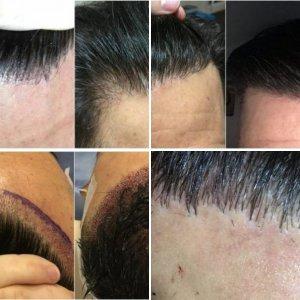 Kierach Hair Transplant