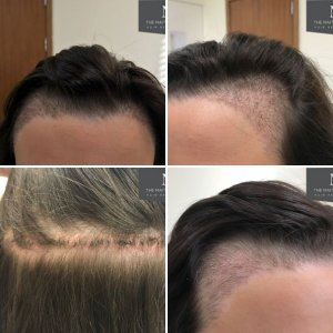 Female hairline - The Maitland Clinic