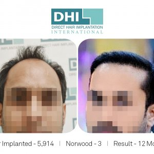 DHI Success Story 2  - Hair Transplant Before and After Results.