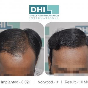 DHI Success Story 3
