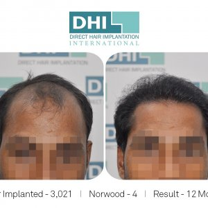 DHI Success Story   - Hair Transplant Before and After Results.