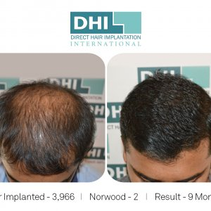 RANJITH GOWDA Hair Transplant Done By DHI Master Surgeon