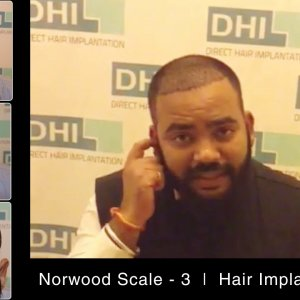 DHI Medical Group- Global Leader in Hair Transplant and Restoration   Patient Testimonial-Must Watch
