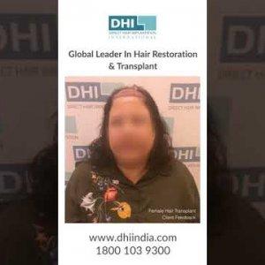 Female Hair Transplant at DHI -Leader in Hair Transplant- See Amazing Hair Transplant Result