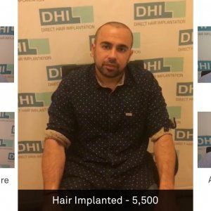 Siddharth Anand Shares His Feedback Regarding DHI Technique- Global Leader in Hair Transplant