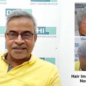 Ravi Shares His Feedback Regarding DHI Technique- Global Leader in Hair Transplant