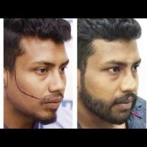 Beard Transplant & Restoration Case - DHI Direct Technique Beard Transplant