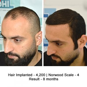 Hair Transplant Results of a Celebrity Hair Stylist