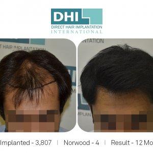 Hair Transplant Amazing Results
