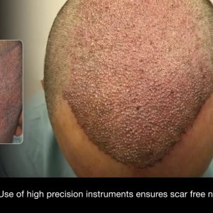 DHI vs FUE : Difference between DHI Technique and FUE.