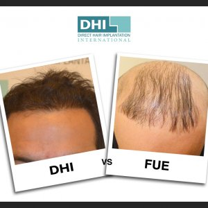 DHI vs FUE vs FUT : Key Differences Between DHI, FUE and FUT