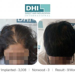 Female Hair Transplant Results - DHI