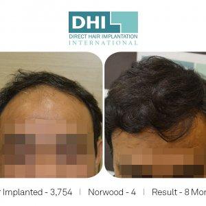 DHI - Hair Transplant Success Story 1