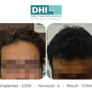 DHI - Hair Transplant Success Story 3