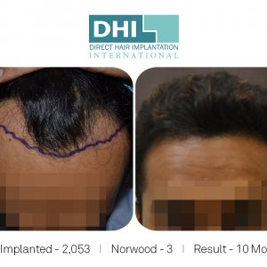 DHI - Hair Transplant Success Story 4
